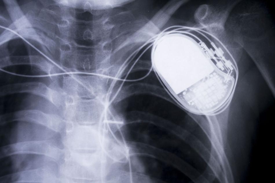 Vehículos eléctricos y pacientes con marcapasos